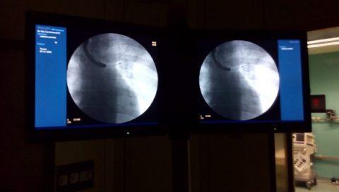 """Cancro al polmone, in uso speciale """"mini sonda"""" Tecnologia avanzata per diagnosi più approfondite"""